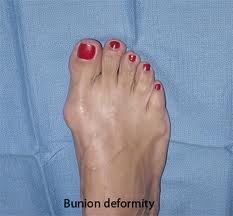 bunion hard skin